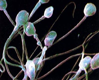 semen-sperm.jpg